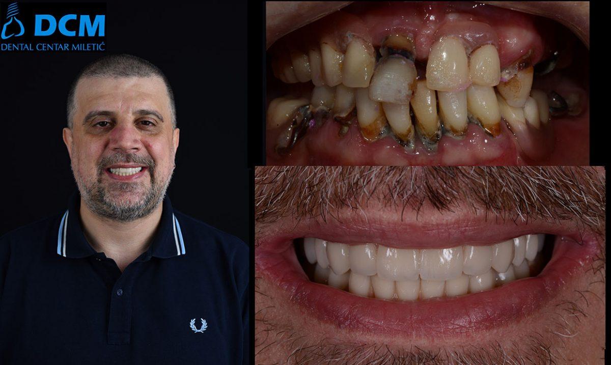 Dental Centar Miletic 8